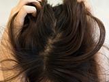 """头上抠下的""""白泥"""",居然不是头皮屑?脱发头油大多是因为它?"""